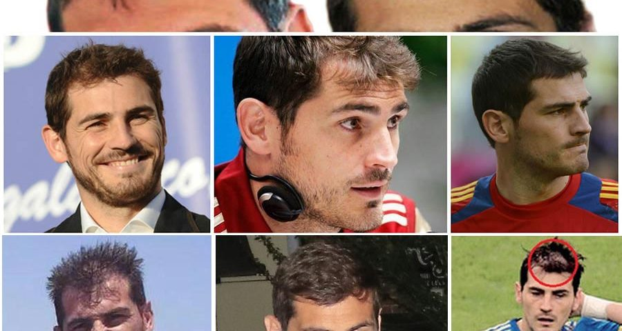 Iker Casillas Hair Transplant